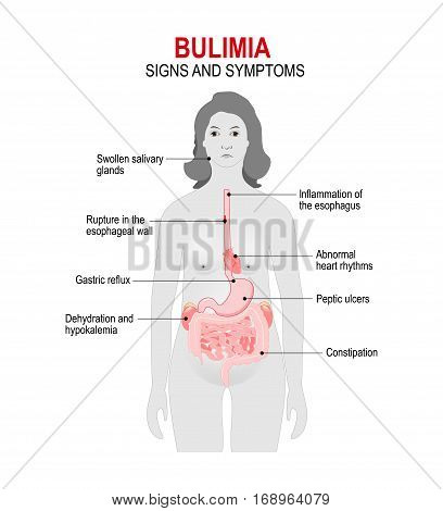 Bulimia is an eating disorder. binge eating and attempts to get rid of the food consumed. Signs and symptoms. woman silhouette with highlighted internal organs.
