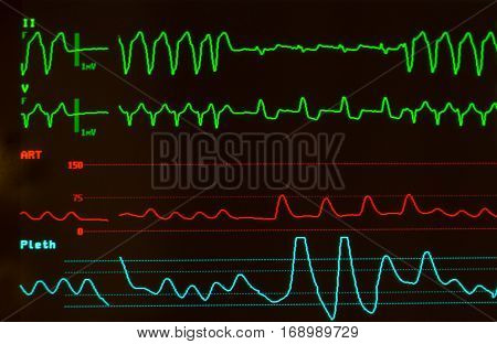 Close up of monitor with black screen showing ventricular tachycardia and Intraventricular Conduction Delay on green lines, arterial blood pressure on Red line and oxygen saturation or plethsmography on blue line.