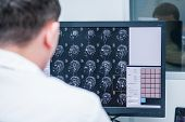 Doctors consider and discuss magnetic resonance image (MRI) of the brain. Back view selective focus poster