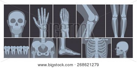 Vector Illustration Of Realistic Set Of Many X-rays Pictures Of Human Body. Transparent X-ray Photos