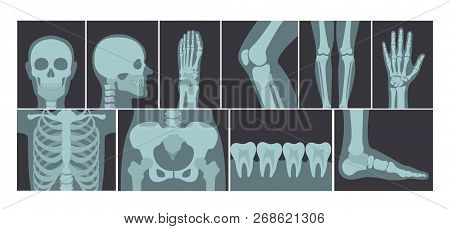 Vector Illustration Set Of Many X-rays Shots Of Human Body, X-ray Pictures Of Head, Hands, Legs And