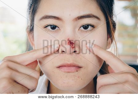 The Herpes Simplex On Asian Woman Nose, Herpes Simplex Is A Viral Disease Caused By The Herpes Simpl