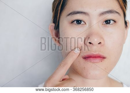 Portrait Of Asian Woman Pointing To Her Face Has Problems With Skin And Acne On Her Face. Conceptual