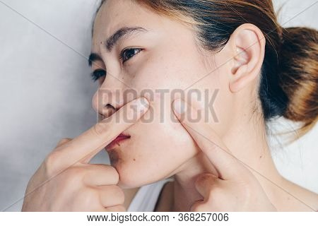 Portrait Of Asian Woman Worry And Pointing To Her Face Has Problems With Skin And Acne On Her Face.