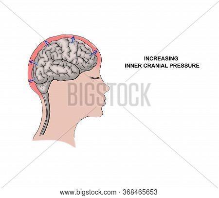 Illustration Of The Increasing Inner Cranial Pressure.