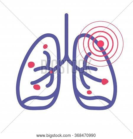 Lungs Cancer Pain Illness Or Lung Pneumonia And Bronchitis Tuberculosis Pulmonary Disease Vector Lin