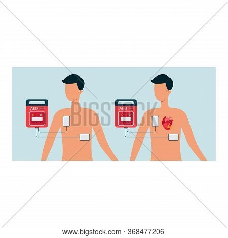 Automated External Defibrillator With Human And Man Body, Aed Concept For Heart.