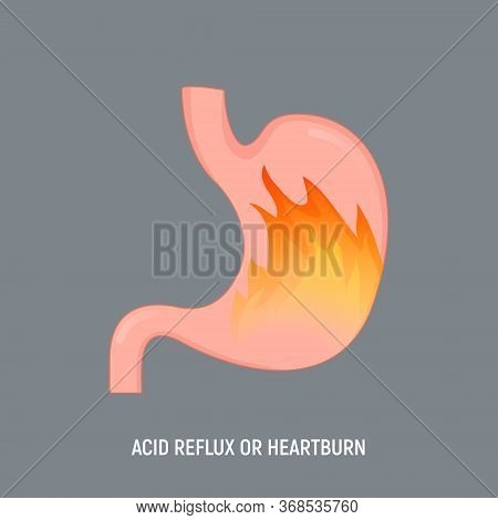 Acid Stomach Burn Gastritis Icon. Gerd Acidity Stomach Reflux Heartburn Ache