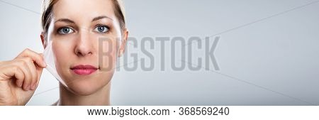 Chemical Face Peeling Treatment. Facial Skin Peel