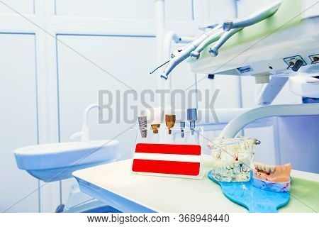 Implantology Concept. Dental Implants In Dental Clinic With Human Jaw Model