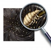 Lice problem as a medical concept of a magnifying glass close up of a human head with an infestation of parasitic nits or eggs hatching from a louse insect as a symbol of diagnosis prevention and treatment for children and adults. poster