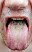Disease medical infection tongue throat a man poster
