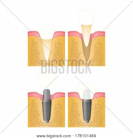 Dental implant, steps for placement of the implant