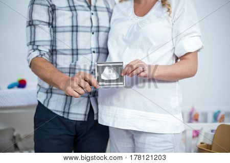 Pregnant couple holding sonography report at home