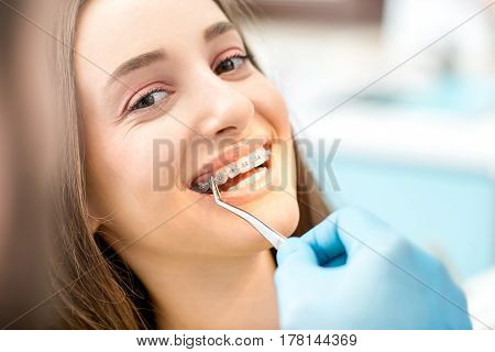 Putting dental braces to the woman's teeth at the dental office