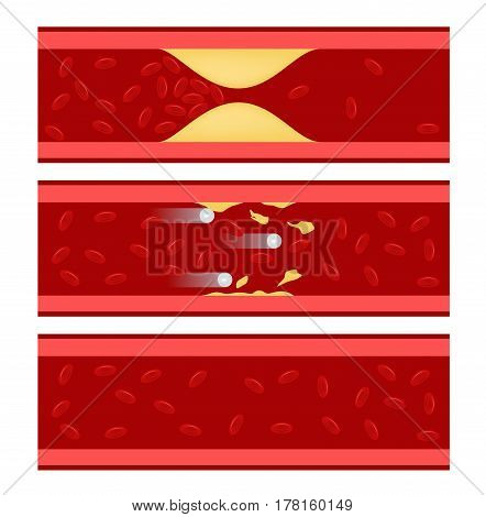 a medicine cures cholesterol in blood vessel on white background