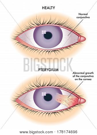 vector medical illustration of the symptoms of pterygium