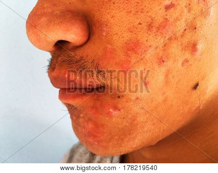 Inflammatory swell acne on the face.on white background