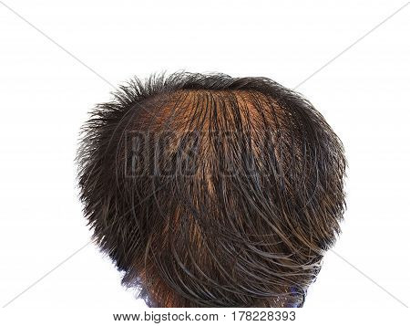 Characteristic symptoms of thinning hair,Glabrous,bald head on white blackground