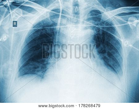 X-ray of patient after surgery with pneumonia.