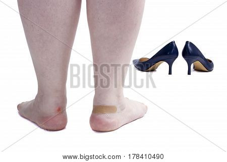 Female legs with callus on foot isolated on white background