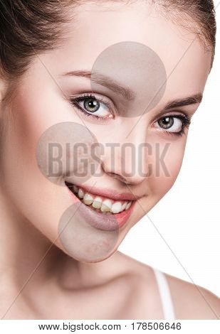 Circles shows problem skin of young woman over white background