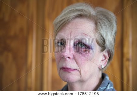 Portrait image of a mature woman with a bruised eye, with copy space.