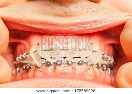 Close-up of man's mouth with braces and rubber correction strings on dental hooks fixing position of teeth