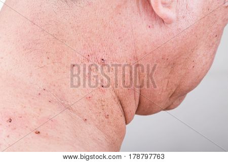 Mole Removed Via Skin Graft Procedure Leaving Scar
