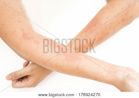 Skin rashes allergies contact dermatitis allergic to chemicals fungal infections from exposure