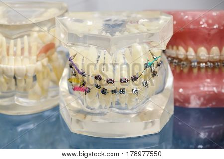 Human jaw or teeth orthodontic dental model with implants dental braces