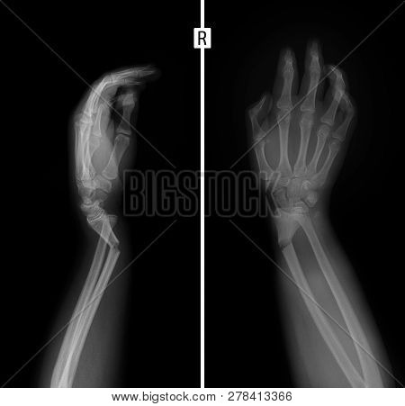 X-ray Of The Wrist. Greenstick Fracture Of The Radius.