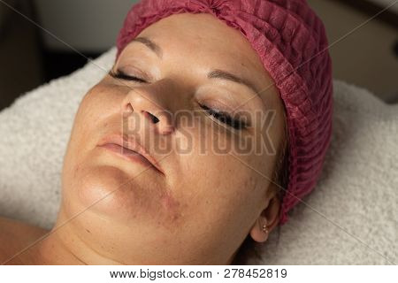 The skin specialist does a LPG massage to facelift procedure. poster