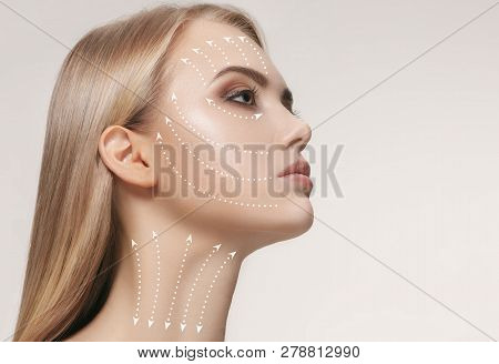 Close-up Portrait Of Young, Beautiful And Healthy Woman With Arrows On Her Face. The Spa, Surgery, F