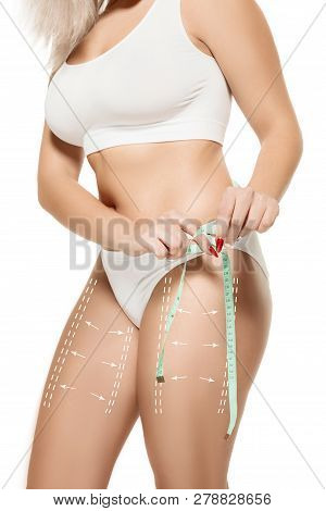 Female Body With The Drawing Arrows. Fat Lose, Liposuction And Cellulite Removal Concept. Marks On T