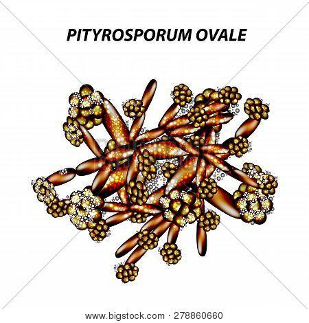 Fungal Yeast Pathogen Seborrhea Pityrosporum Ovale Malassezia Furfur. Seborrhea Skin And Hair. Dandr