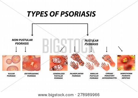 Types Of Psoriasis. Pustular And Not Pustular. Vulgar, Erythroderma, Erythrodermic Psoriasis, Persis