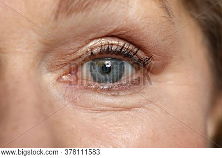 Blue Eye Of Elderly Woman Look Straight. Safe Laser Vision Correction. Surgery To Restore Vision. Mo