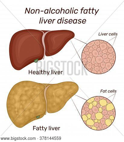 Illustration Of Non-alcoholic Fatty Liver Disease. For Comparison Shows The Healthy And Diseased Liv