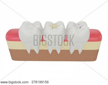 Teeth With Gold, Amalgam And Composite Inlay Dental Filling, Three Molar Teeth In The Gum, Perspecti