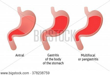 Location Of Gastritis, An Inflammation Of The Lining Of The Stomach. Three Types Antral, Of The Body