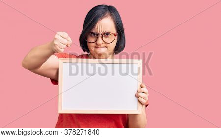 Brunette woman with down syndrome holding empty white chalkboard annoyed and frustrated shouting with anger, yelling crazy with anger and hand raised