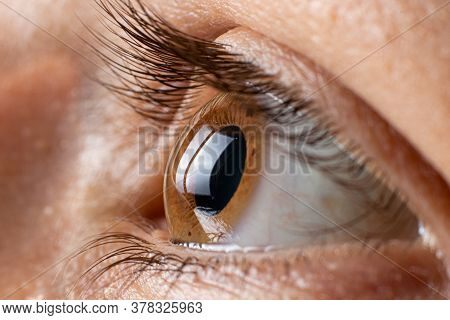Keratoconus Of Eye, 3th Degree. Contortion Of The Cornea In The Form Of A Cone, Deterioration Of Vis