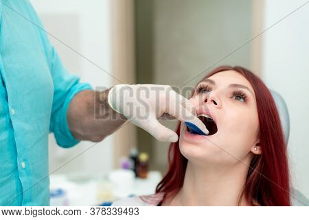 The Orthodontist Shows The Patient An Impression Tray In Which The Silicone Impression Material Will
