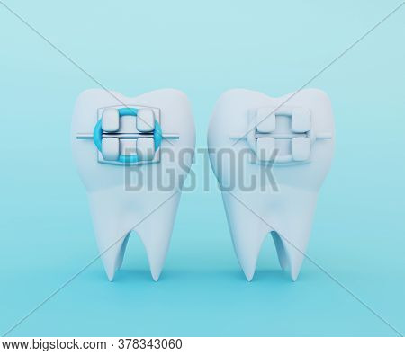 White Clear Tooth With Metal Braces And Tooth With Ceramic Braces. Comparison Of Braces And Brace Se