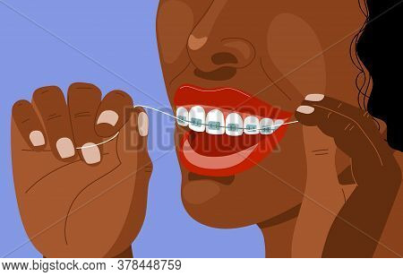 Dark Skinned Afro Young Woman With Braces Uses Super Floss. Daily Dental Care. Correction Of Bite An