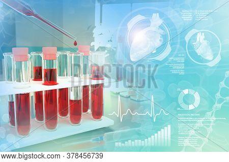 Medical 3d Illustration, Test-tubes Vials In Study Office - Blood Sample Test For Red Blood Cells Or