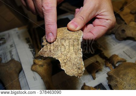 Bones Of A Human Body, Holding Part Of The Skullcap In Hand
