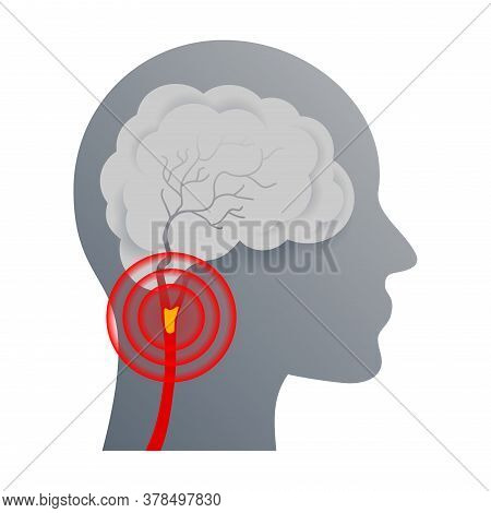 Cerebrovascular Disease That Affect The Blood Vessels Of Brain And Cerebral Circulation And Damaged
