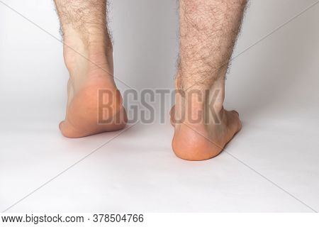 Bare Hairy Male Legs, Feet, Heels On A White Background. Achilles Tendon.